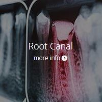 root-canal-endo